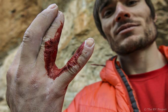 Battle wounds.